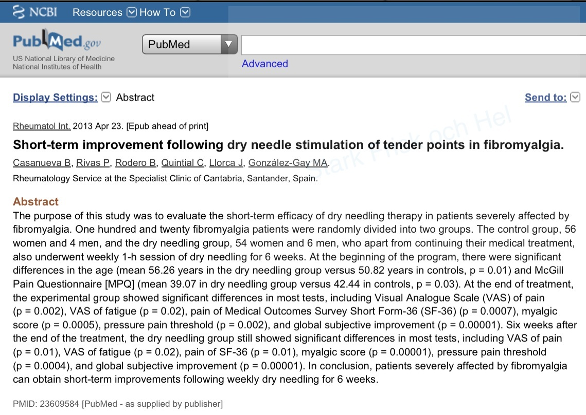 PubMed Dry Needling Fibromyalgia
