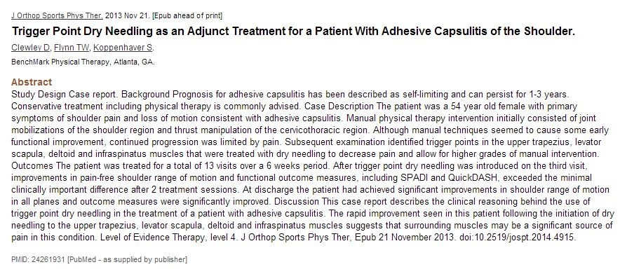 PubMed Dry Needling Adhesiv Kapsulit